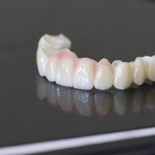 Dantų protezavimas: kodėl cirkonio keramika turi savo kainą?