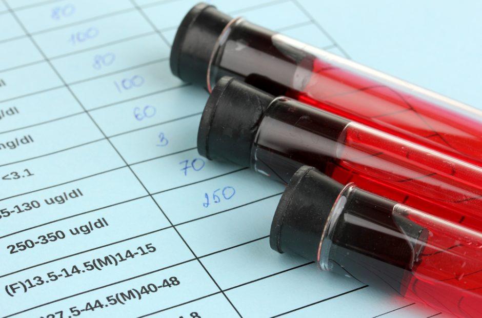 Polinkį nusižudyti gali atskleisti kraujo tyrimas