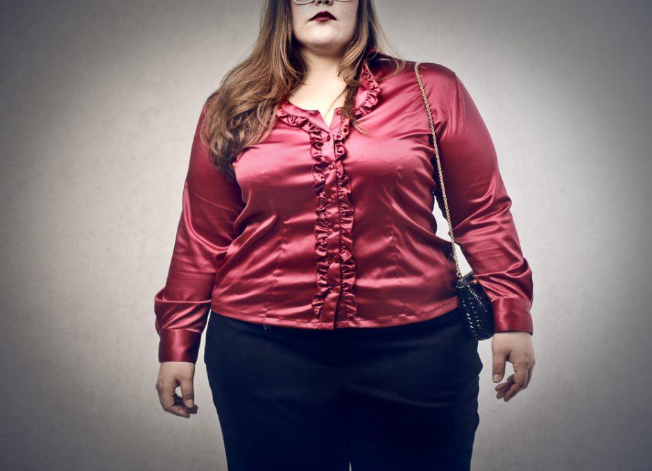 """Daugiau nei 170 kg. svėrusi moteris: svoris """"užaugo"""" nuo rūpesčių"""