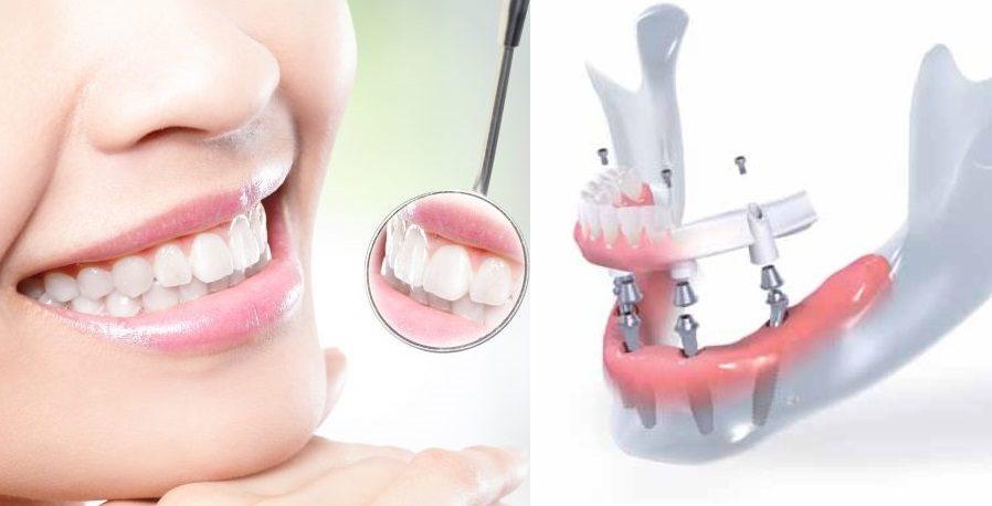Jokių išimamųjų protezų– tikri dantys per vieną dieną