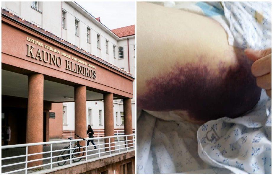 Košmarą Klinikose išgyvenusios moters artimieji: bijome, kad ji nebevaikščios