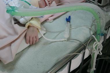 Vilniuje gydomas, kaip įtariama, neblaivios motinos sumuštas kūdikis