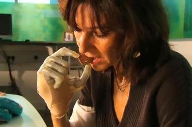 Į rinką atkeliavo bioniniai pirštų protezai
