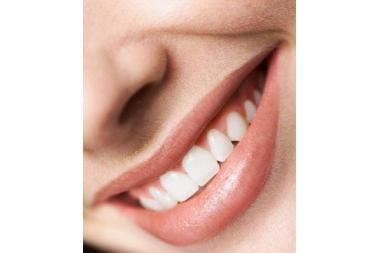 Patarė, ką pirmiausia daryti, kad dantys išliktų sveiki