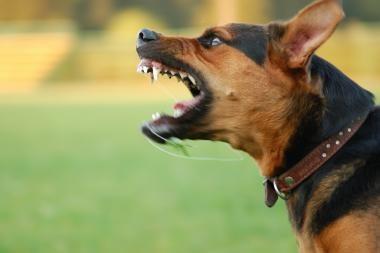 Šuo vos nepasmaugė 8 metų mergaitės
