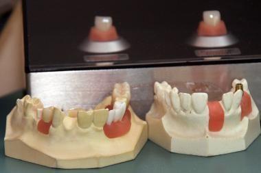 Iš Kretingos rajono gyventojos pavogti dantys
