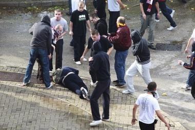 Vilniuje guminiu šratu sužalotas jaunuolis