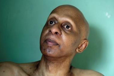 Kubos disidentas negalės atsiimti Saharovo premijos