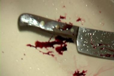 Jurbarke moteris peiliu sužalojo sugyventinį