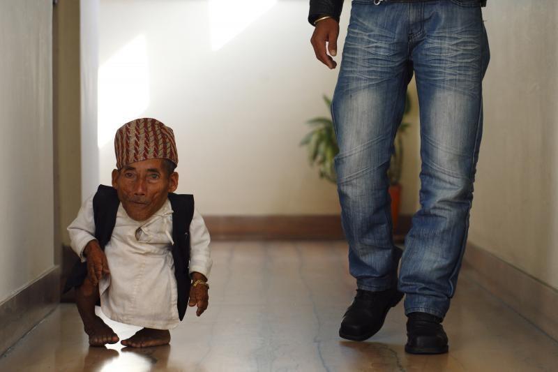 72 metų Nepalo gyventojas pripažintas mažiausiu pasaulyje vyru
