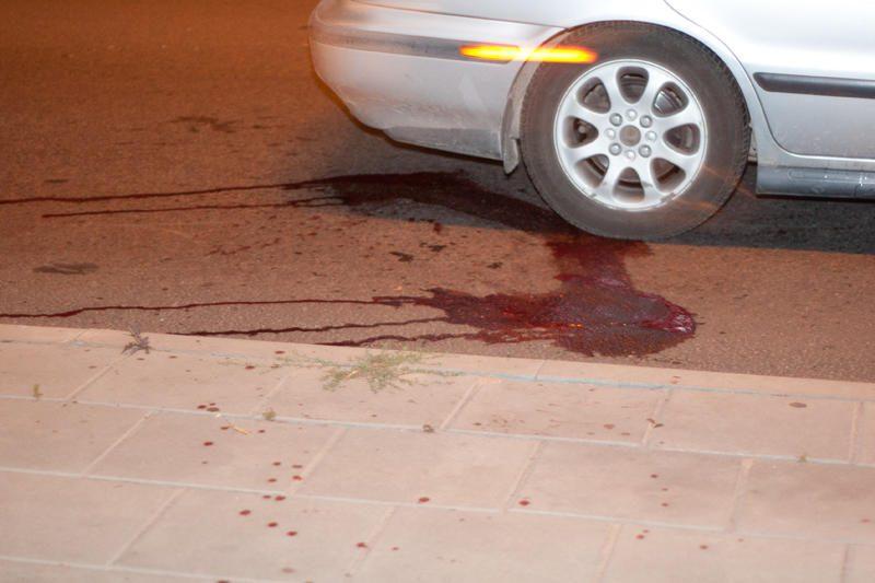 """Kraupi avarija: """"britva"""" pėsčiajam nukirto koją"""