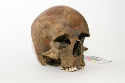 Australijoje rasta kelių amžių senumo kaukolė iškėlė naujų klausimų