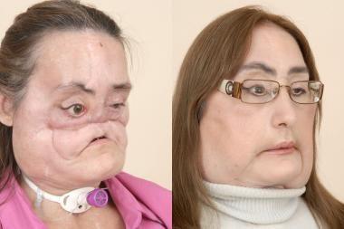 Moteris gyvens su nauju veidu