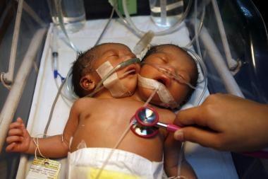 Filipinuose gimė kūdikis su dviem galvomis