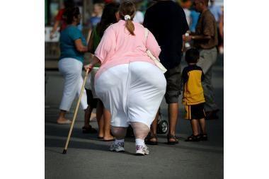 """Nutukę žmonės patiria """"sunkią smegenų degeneraciją"""""""