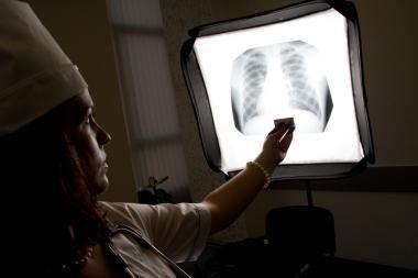 Mokslininkai išbandė 1896 metų rentgeno aparatą