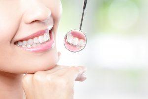 Odontologė atskleidė tikrąją holivudinės šypsenos paslaptį