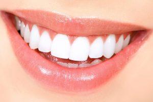 Tobulos šypsenos link: ką būtina žinoti?
