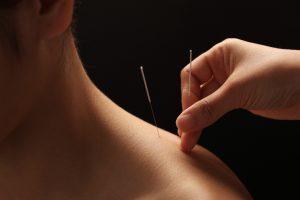 Akupunktūra populiarumu vejasi moderniausią šiuolaikinę mediciną