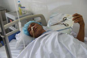 Praėjus 18 metų po operacijos, iš vyro pilvo ištrauktos žirklės