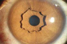 Būna ir taip: moters akyje – paslaptingas ir itin retas žiedas